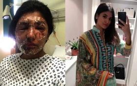 Anh: Nữ sinh từng bị tạt axit vào đúng dịp sinh nhật khoe ảnh hồi phục đáng kinh ngạc