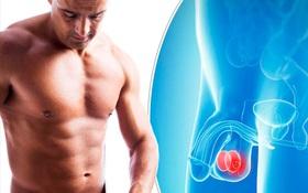 Dựa vào nhóm gen di truyền có thể chẩn đoán được căn bệnh ung thư phổ biến ở nam giới