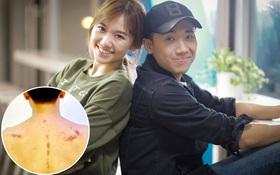 """Hari Won cạo gió cho Trấn Thành, Cẩm Ly ngỡ ngàng: """"Ai cạo ngu vậy?"""""""