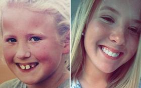 19 khuôn mặt thay đổi ngoạn mục chứng tỏ sức mạnh của niềng răng thật là vi diệu