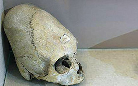 Vén bức màn bí mật về hộp sọ thuôn dài của sinh vật bị nghi là người ngoài hành tinh