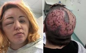 Tự nhuộm tóc màu mè tại gia, cô gái ăn quả đắng vì bị bong hết da đầu