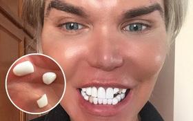 Búp bê Ken bị rơi mất răng giả vì vui tay chạm vào trong lúc say rượu