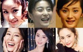 """Trong khi nữ thần Hàn Quốc """"đập đi xây lại"""" thì mỹ nhân Cbiz chỉ cần niềng răng thôi đã lên đời nhan sắc"""
