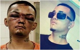 Thanh niên sang chảnh bị đánh bầm mặt vì dám trấn lột xe của 3 cầu thủ bóng bầu dục