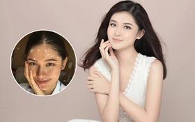 Á hậu Thùy Dung bất ngờ bị bệnh thuỷ đậu trước thềm chung kết Miss International 2017