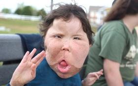 Bé gái 9 tuổi mắc chứng bệnh lạ lùng không tên trải qua vô số cuộc phẫu thuật