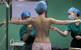 Đi bơm ngực do bác sĩ nha khoa thực hiện, người phụ nữ đau đớn bị hoại tử