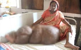 Nỗi khổ của người phụ nữ có đôi chân khổng lồ nặng 60kg do nhiễm ký sinh trùng