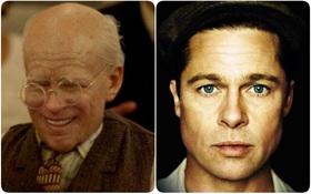 """Huyền thoại """"sống ngược tuổi"""" Benjamin Button và những câu chuyện về căn bệnh có thật"""