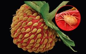 Ai cũng từng nhìn, ăn các thứ này nhưng mấy ai biết dưới kính hiển vi chúng đáng sợ như thế nào