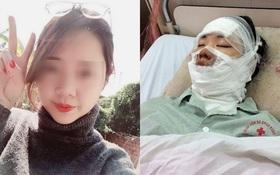 Cô gái xinh đẹp bị bỏng toàn bộ gương mặt khi 55 quả bóng bay trên tay bất ngờ phát nổ