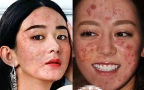 """Sau Dương Mịch, loạt nữ thần sắc đẹp Cbiz cũng bị photoshop đến mức """"tuột dốc nhan sắc"""""""