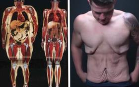 Đây là hậu quả khủng khiếp sẽ xảy ra khi bạn giảm cân một cách quá đột ngột