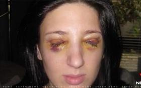 Người phụ nữ nhắm mắt 3 ngày, mở mắt 3 ngày suốt 13 năm vì bệnh lạ
