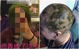 Nhuộm tóc 4 lần trong 7 tiếng để có màu xanh lá, người phụ nữ bị sốc phản vệ và cái kết không mong muốn