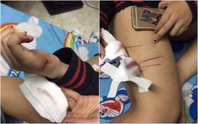 Cô gái trẻ phải điều trị phơi nhiễm HIV khi bị nhóm biến thái rạch đùi trong đêm ở Sài Gòn