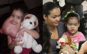 Từng mang khối u nặng 2,2 kg trên người, chỉ sau một ca phẫu thuật, cuộc đời cô bé này đã thay đổi hoàn toàn