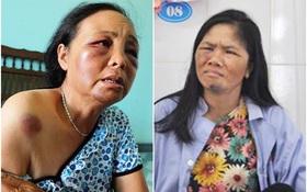 Công an triệu tập nhiều người hành hung 2 người phụ nữ bán tăm vì nghi bắt cóc trẻ em
