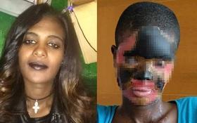 Bị gã chồng tàn ác đổ axit, người phụ nữ hỏng hoàn toàn gương mặt, phải ăn và uống qua ống truyền