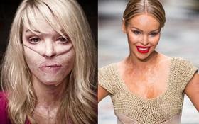 10 năm sau khi bị tạt axit, người phụ nữ này đã làm nên kỳ tích, tự tin sải bước trên đường catwalk