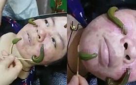 Phương pháp trị mụn chắc không bạn gái nào dám thử: Dùng đỉa hút sạch mụn trên gương mặt