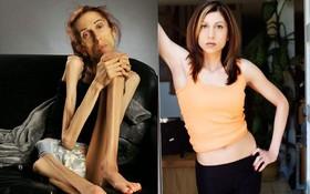 """Từ cơ thể 18kg chỉ có da bọc xương, người phụ nữ lột xác thành """"thiên nga"""" xinh đẹp khiến ai cũng ngỡ ngàng"""