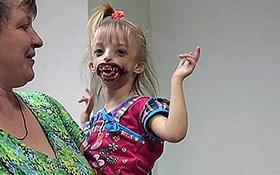 """Bé gái bị xa lánh vì mắc dị tật """"miệng quỷ"""""""
