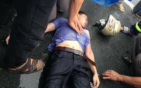 Vĩnh Phúc: Đang đi giữa đường, nam thanh niên bị sét đánh trúng mặt gây bất tỉnh