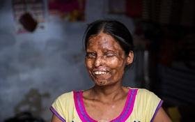 Bất chấp bị tạt axit nặng nề, 2 mẹ con vẫn sống với người chồng dã man vì quá nghèo và xấu hổ