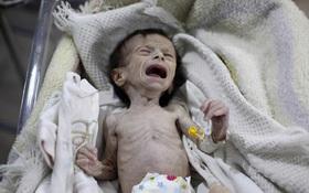 Hình ảnh em bé Syria suy dinh dưỡng, gầy trơ xương khiến cả thế giới rúng động