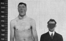 Căn bệnh lạ khiến người đàn ông sinh ra rất lùn nhưng qua đời là người khổng lồ