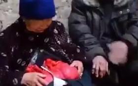 Không có tiền phẫu thuật, bà cụ nghèo phải đeo túi nilon đựng... ruột suốt 20 năm trời