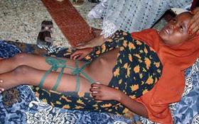 Lời giải khoa học cho hủ tục đau đớn với các bé gái ở châu Phi