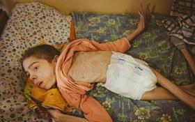 Không chỉ riêng Syria, vấn nạn suy dinh dưỡng cũng đang xảy ra ngay tại một quốc gia châu Âu