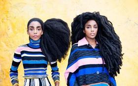 Hai chị em song sinh nổi như cồn nhờ bộ tóc xù như chổi rơm khổng lồ