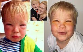 Bé trai 2 tuổi bị mù tạm thời vì mẹ nhuộm tóc