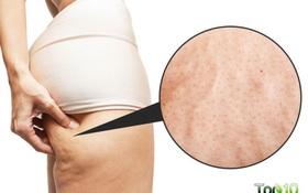 Nếu muốn da mịn màng, không bao giờ bị sần sùi như vỏ cam: Hãy áp dụng theo cách này