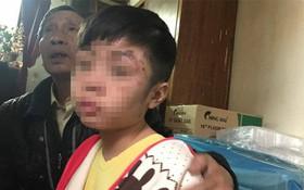 Bé trai 10 tuổi bị bạo hành: Đến bữa ăn, bố và cô bê mâm vào trong phòng, còn cháu thì ăn ở phòng ngoài