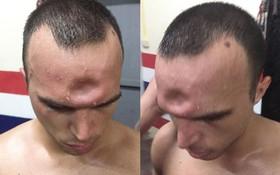 SỐC: Võ sĩ Muay Thái lõm trán kinh hoàng sau cú thúc chỏ của đối thủ