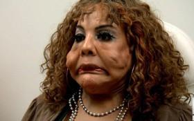 """Bị """"lang băm thẩm mỹ"""" bơm xi măng vào mặt, người phụ nữ biến dạng đến mức ai nhìn cũng phát khiếp"""