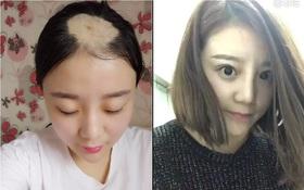 Cô gái mất cả mảng tóc vì ăn ngô bằng khoan năm nào giờ đã xinh đẹp trở lại rồi