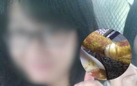 Hình ảnh nữ sinh THPT Phan Đình Phùng bị bỏng độ 3 khiến nhiều người xót xa