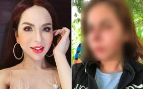 Lin Da - hotgirl chuyển giới 1 triệu followers bất ngờ chia sẻ ảnh mặt biến dạng sau khi nạo silicon