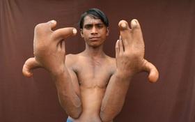 Cậu bé bị xa lánh vì mang đôi tay dị dạng của quỷ