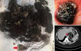 Vì thói quen kì quái, người phụ nữ khiến bác sĩ sốc khi lấy ra vật này trong dạ dày