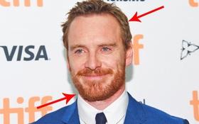 Tóc thì màu nâu nhưng bộ râu lại màu đỏ, nguyên nhân của hiện tượng bí ẩn này là...