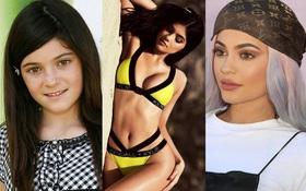 """Kylie Jenner và hành trình """"bơm môi nâng mông"""" thành hot girl số 1 thế giới"""