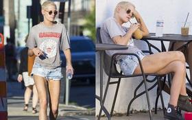 Đôi chân nuột nà của Kristen Stewart bỗng bầm dập khi xuất hiện trên phố