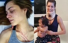 Hoa hậu Venezuela bị nữ ca sĩ đánh trầy mặt, chấn thương khắp người đến mức nhập viện